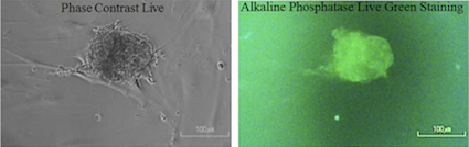 Alkaline phosphatase staining of stem cells reprogramed with functionalized nanoparticles